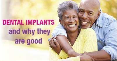 dental implants and why they are good