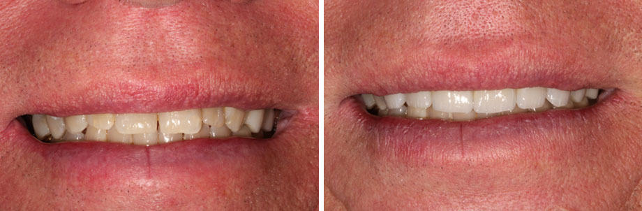 Before and after dental photo - Healthy Smiles of St. Louis