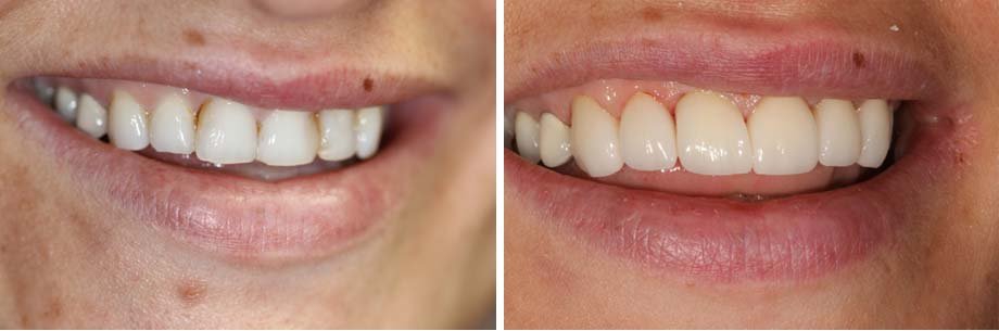 before and after dental photos - Healthy Smiles of St. Louis