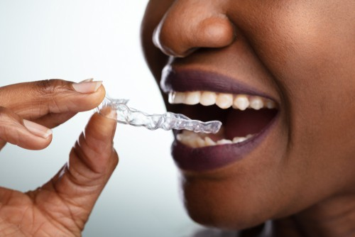 woman with clear dental aligners